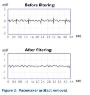 Philips HS1 pacemakerdetectie