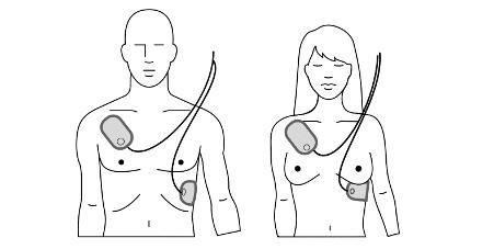 positie elektroden AED