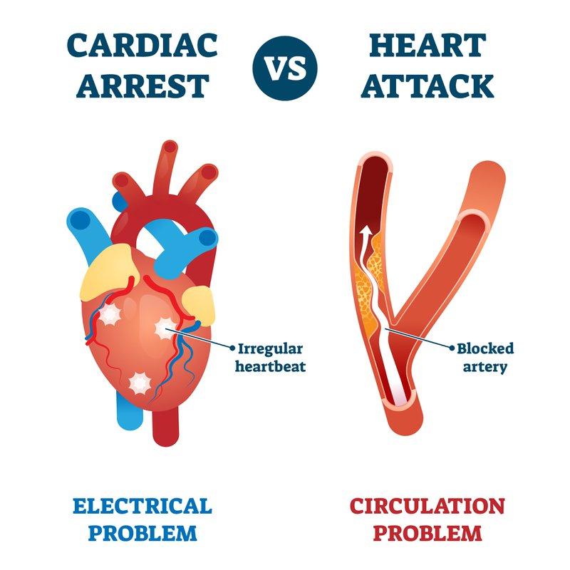 verschil tussen hartaanval en plots hartfalen